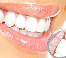 dental cleaning vero beach fl